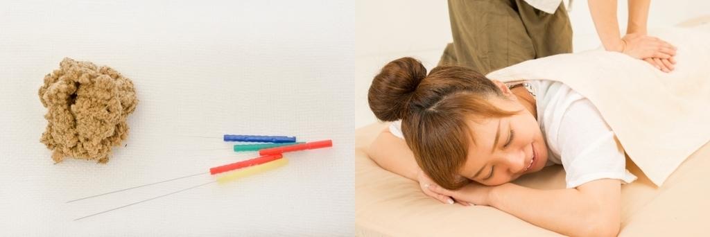 マッサージを受ける女性と鍼灸