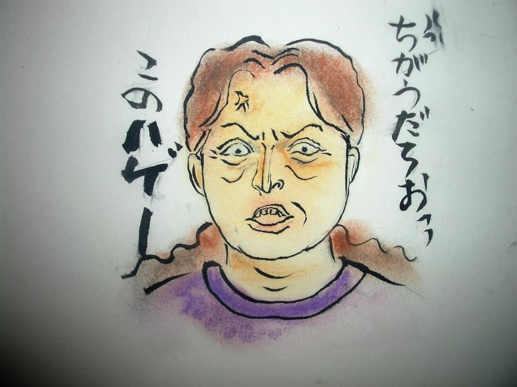 f:id:atekushi:20170731172726j:plain