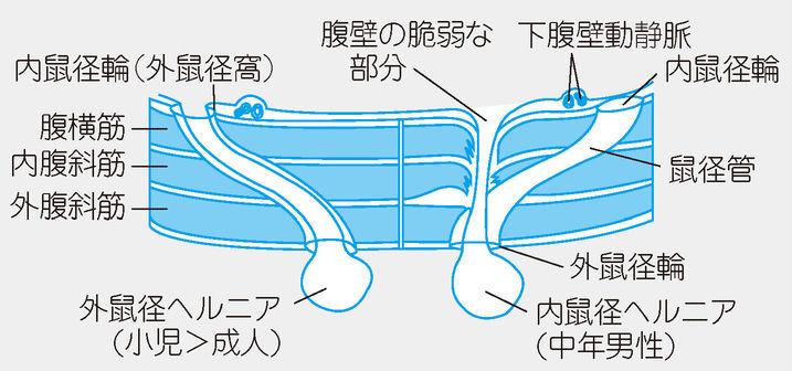 f:id:atsuhiro-me:20151108001258j:plain:w300
