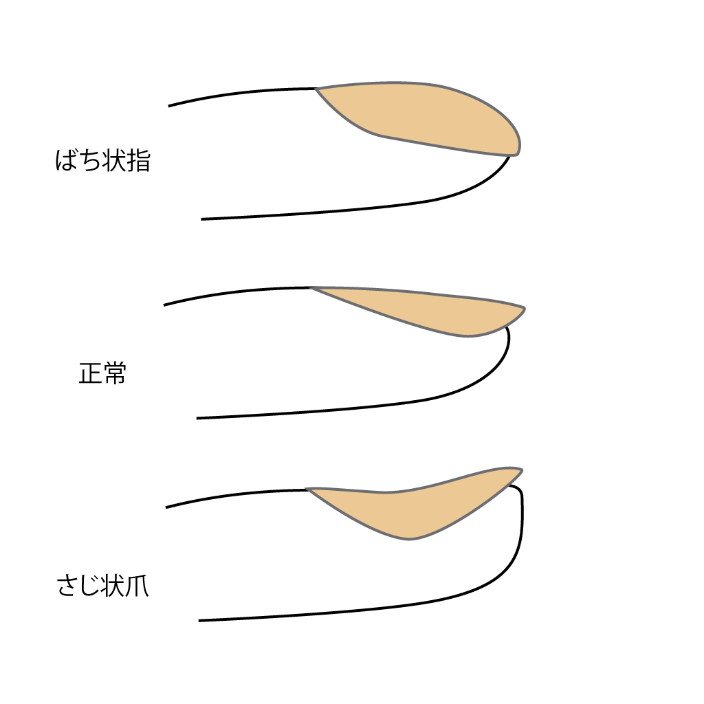 f:id:atsuhiro-me:20151118140426p:plain:w300