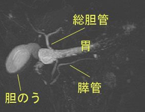 f:id:atsuhiro-me:20151119212300j:plain:w300