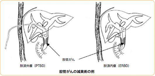 f:id:atsuhiro-me:20151119212301j:plain:w300