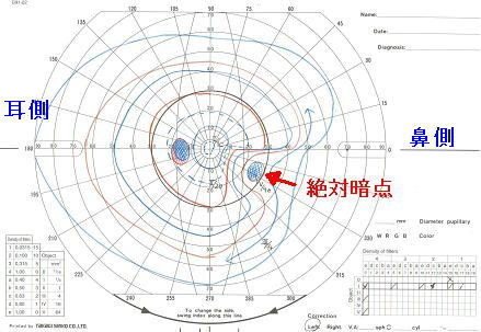 f:id:atsuhiro-me:20151223143534j:plain:w300