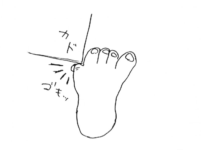 小指 ぶつけ た 痛い の 足