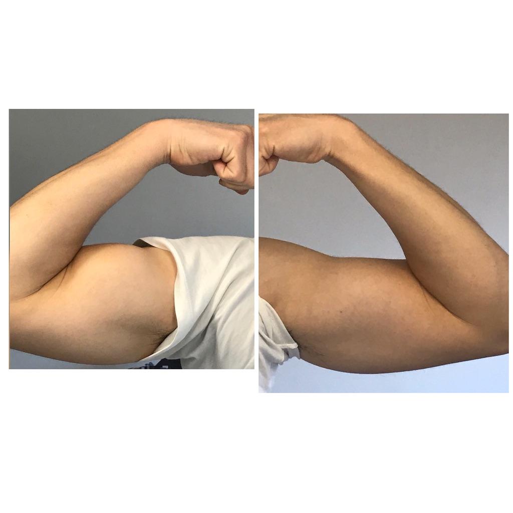 2月2日の写真( 右腕 ・ 左腕 )