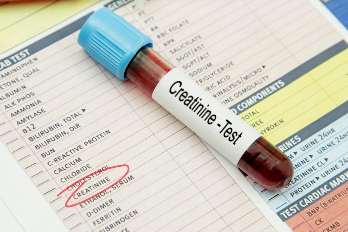 クレアチニン値が高いので1ヶ月半クレアチン摂取をやめた結果