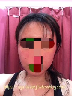 f:id:aya_beauty:20200308120857p:plain