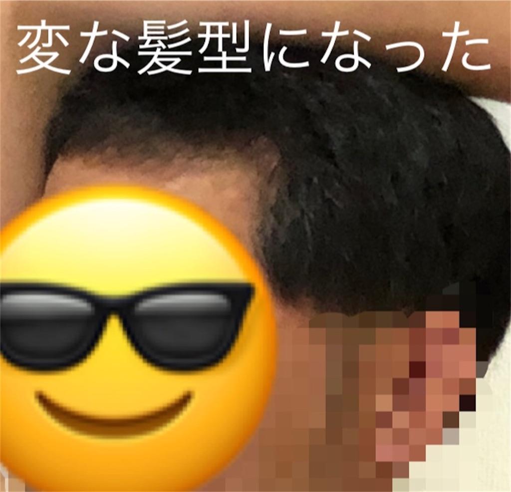 f:id:azuazuazukina:20200909224257j:image