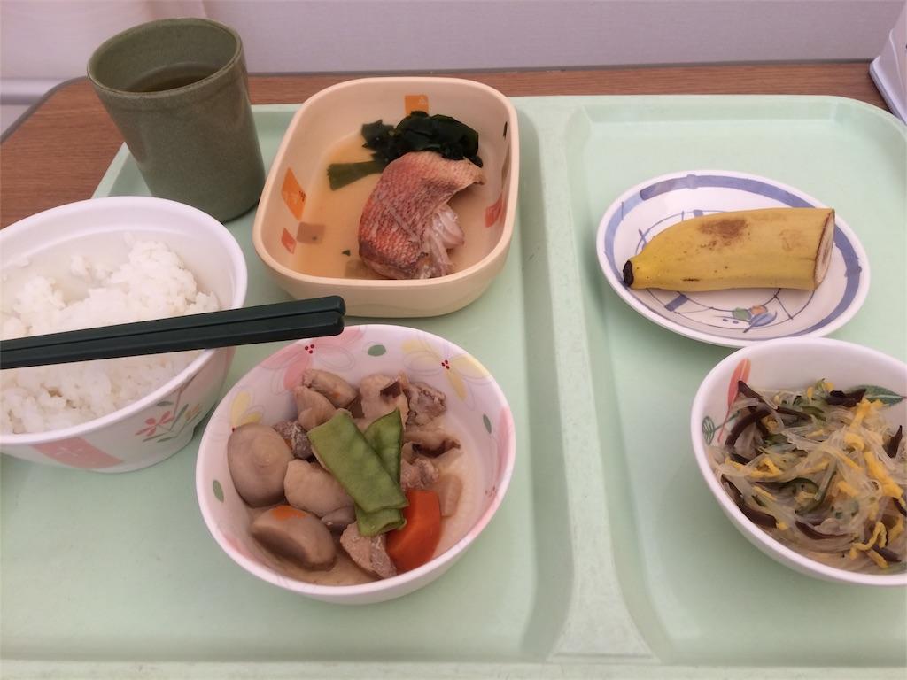 f:id:azukimacho:20170201092753j:image