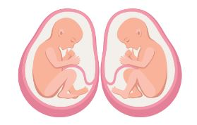 二絨毛膜二羊膜双胎(DD双胎)