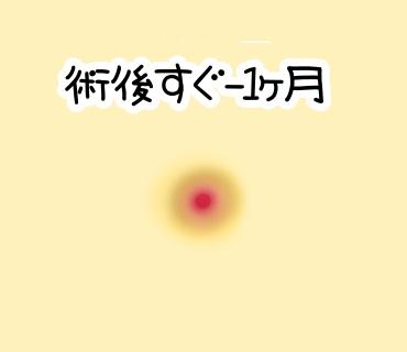 f:id:bashii:20190119001747j:plain