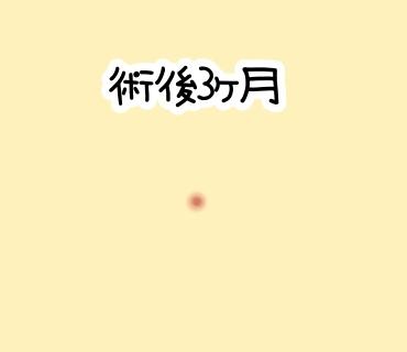 f:id:bashii:20190119001853j:plain