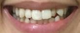 f:id:beauty_tooth:20180107193422p:plain