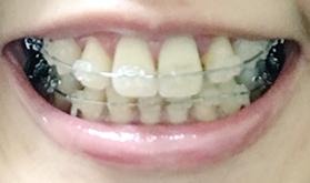 f:id:beauty_tooth:20180219105245p:plain