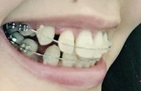 f:id:beauty_tooth:20180219105346p:plain
