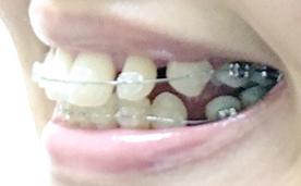 f:id:beauty_tooth:20180219105358p:plain