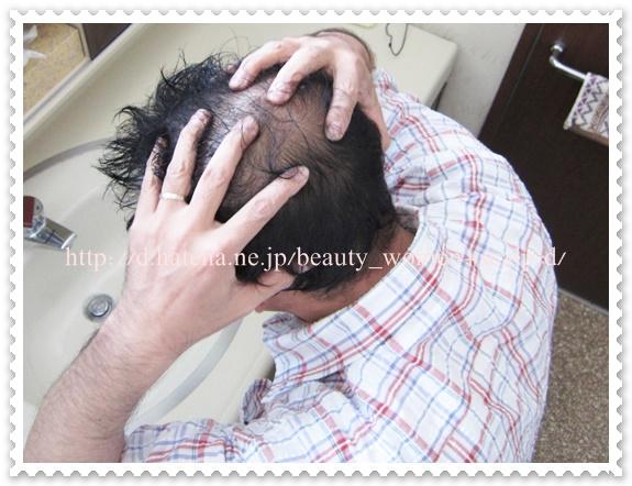 頭皮マッサージ 方法
