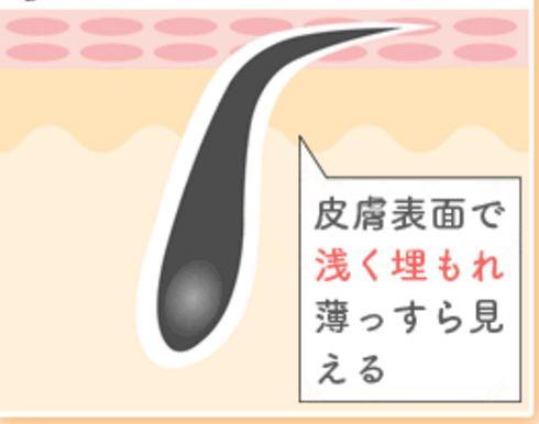 f:id:beautylegmasami:20161030181710j:plain
