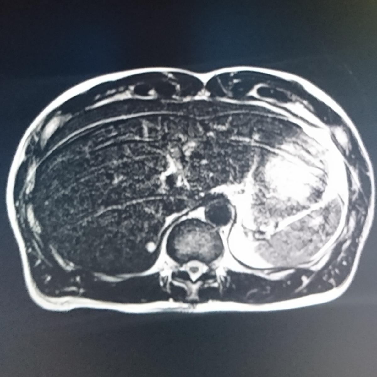 息が止まらず呼吸同期も考える腹部MRIのゴースト