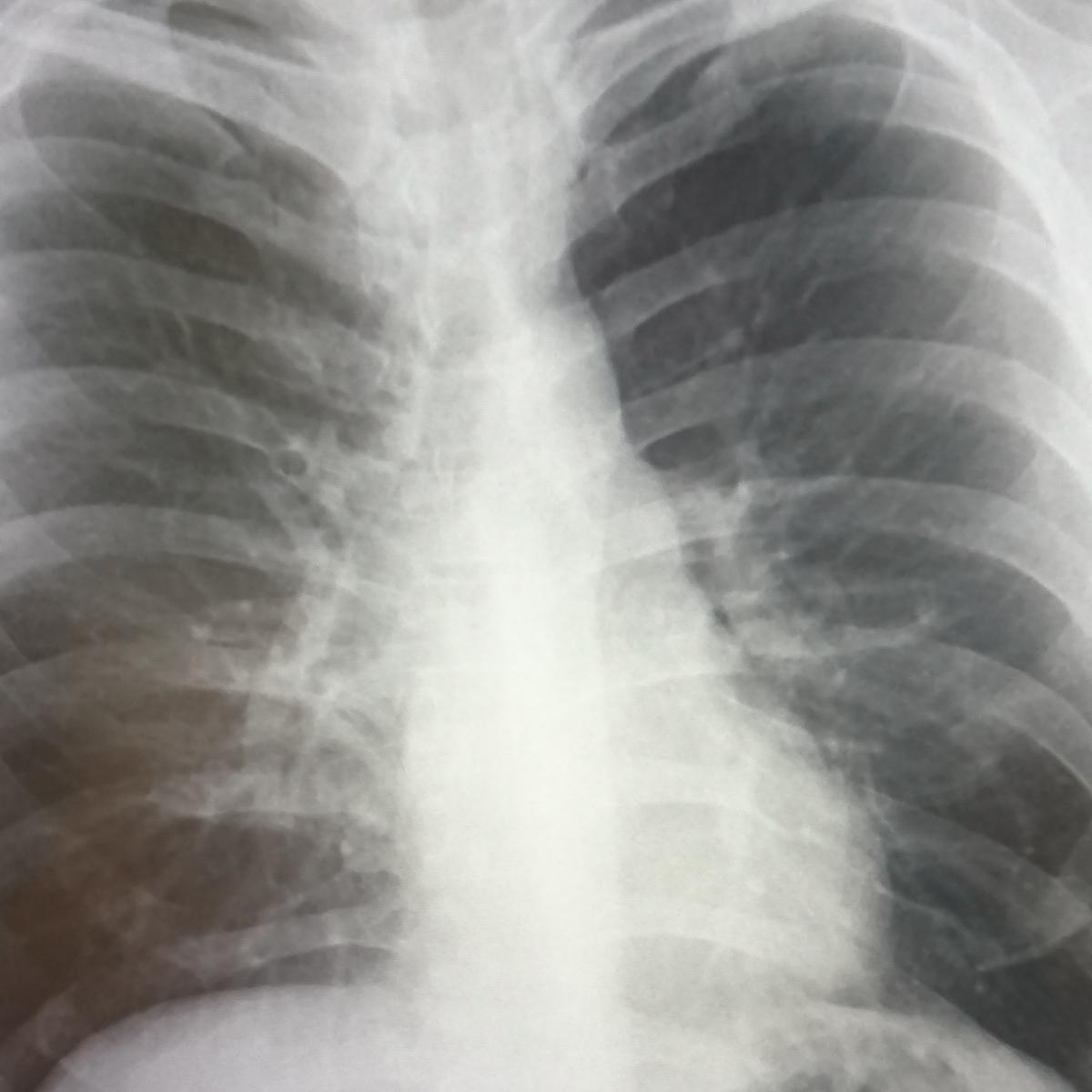 息が止まって気管支がみえる胸部一般撮影写真