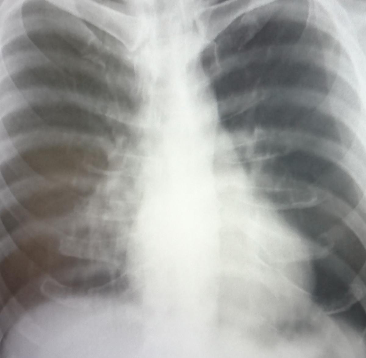 息止め不良なため気管支の分布が不明瞭な胸部xp