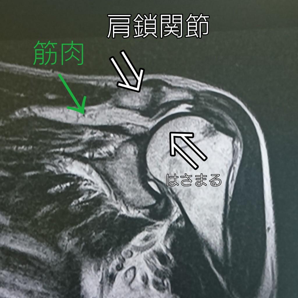 腱板断裂を解説するMRI画像