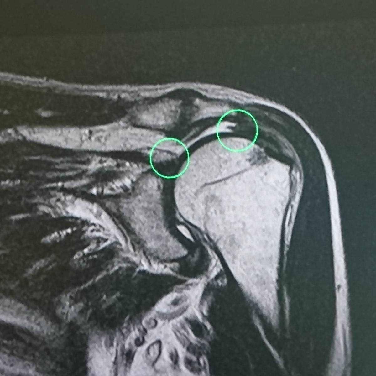 肩関節腱板断裂のT2wMRI画像