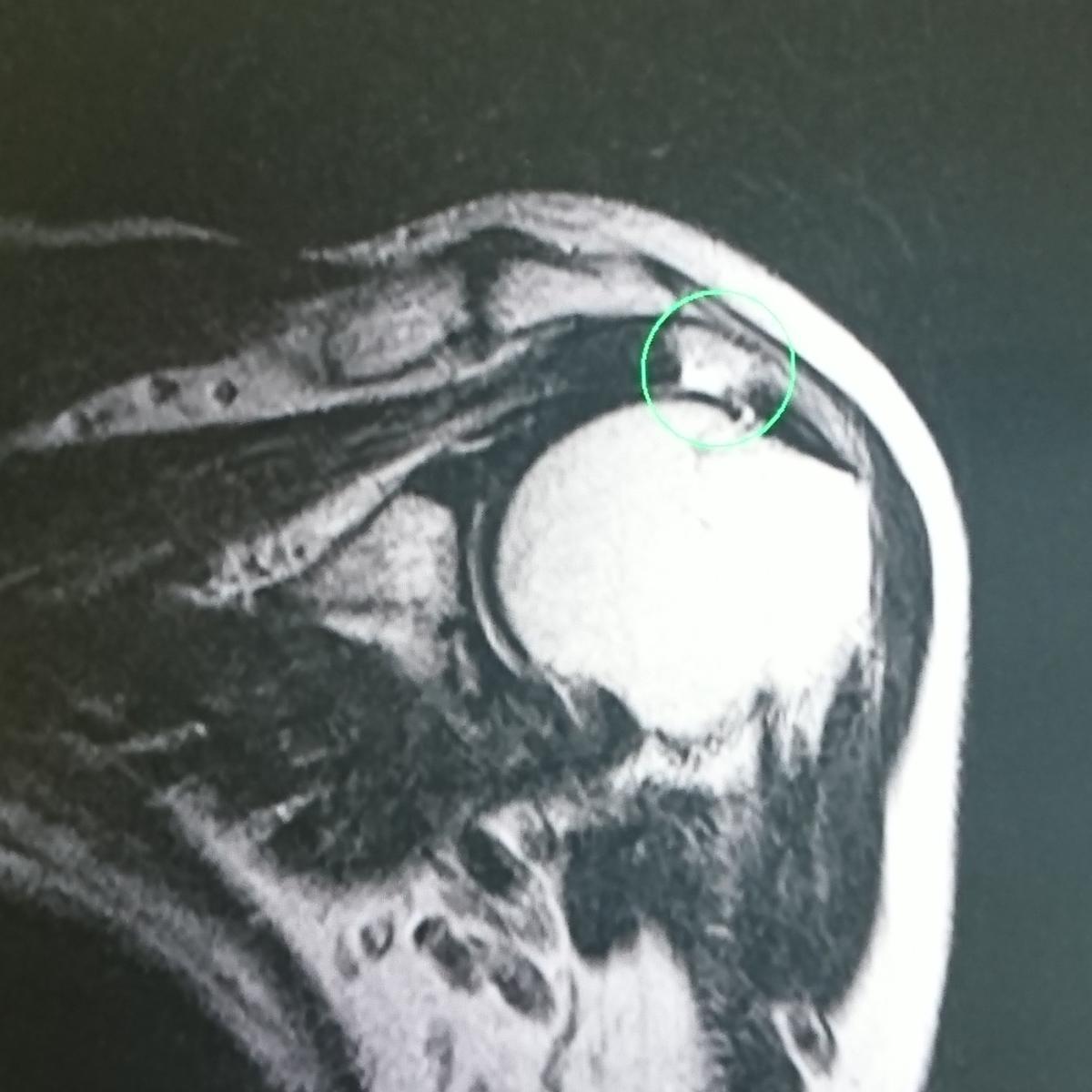 肩関節腱板損傷のMRI画像