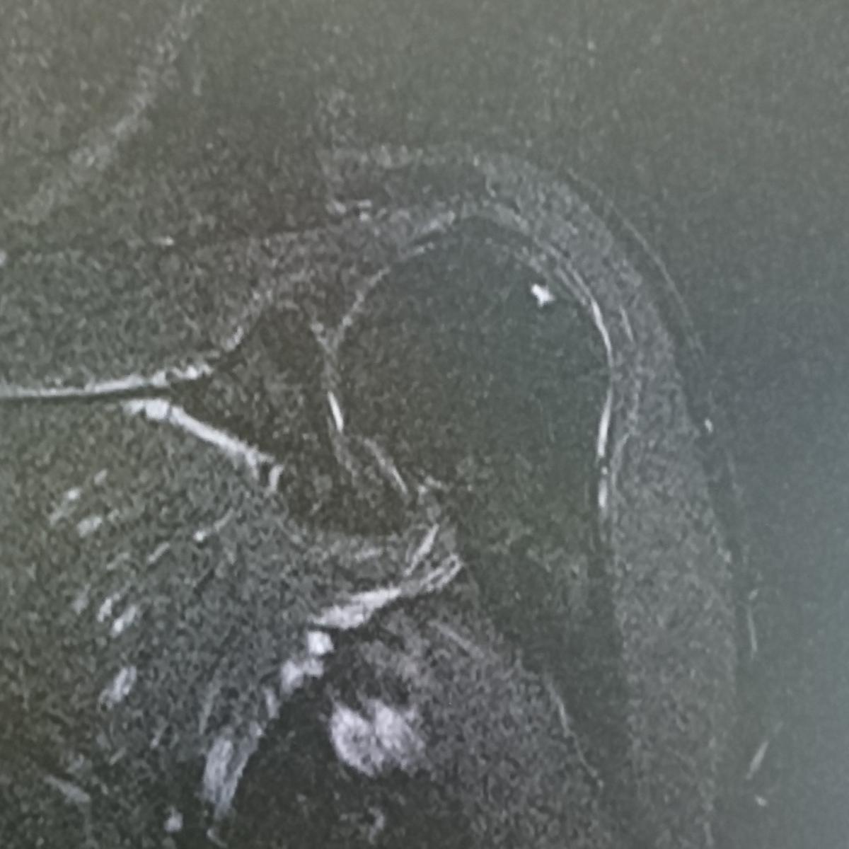 正常な肩関節T2強調脂肪抑制MRI画像
