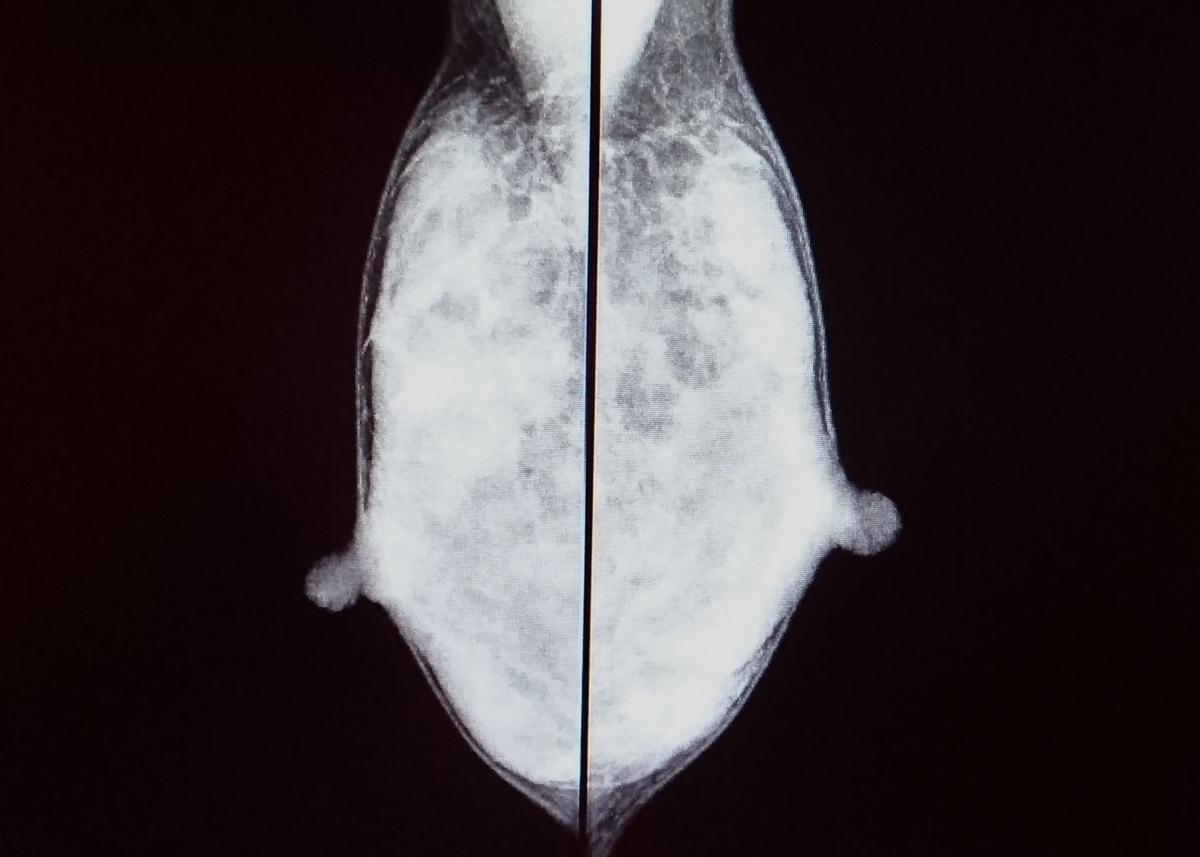 乳がんの対策方法を現役の診療放射線技師が教えます。知らない男いるの(高濃度乳腺)