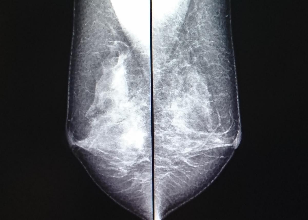 乳がんの対策方法を現役の診療放射線技師が教えます。知らない男いるの(乳腺散在)
