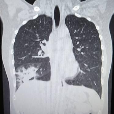 肺炎とは?原因となるものは?レントゲン写真やCTではどう写るの?肺炎球菌ワクチンとは?
