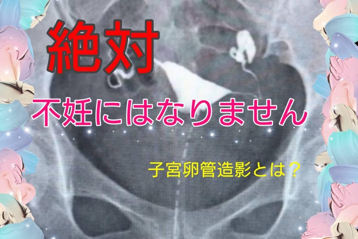 放射線科の検査では絶対に不妊にならない理由。どれくらいで不妊になる?【子宮卵管造影とは?】