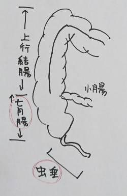 盲腸とは?虫垂炎をCTで診る!【位置は?原因は?手術は?】