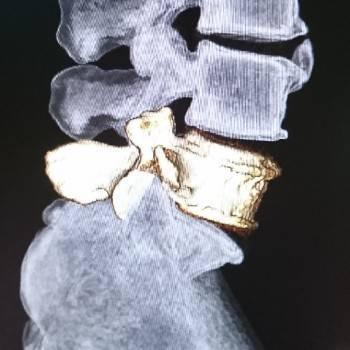腰椎分離症とは?運動大好き高校生は特に要注意【治療法は?手術?コルセット?】