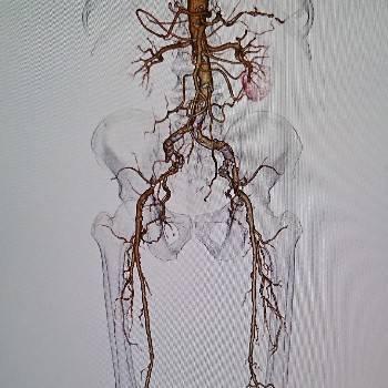 病変部位を目指せ!血管の3D迷路をクリアする方法【IVR】