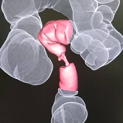 CTで大腸がんは分かるの?どう写るの?【CTコロノグラフィとは】