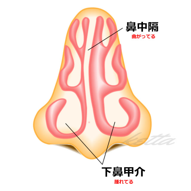 鼻中隔湾曲症の手術と下鼻甲介切除術