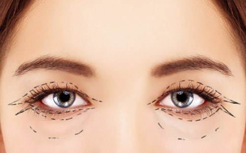 Is blepharoplasty surgery right for you