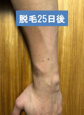 f:id:beyond_konkatsu:20190206234855p:plain