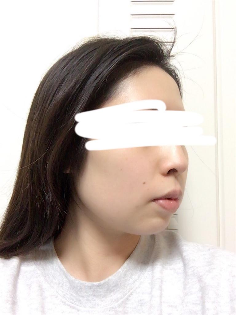 f:id:biyou-syuuji:20170129185410j:image