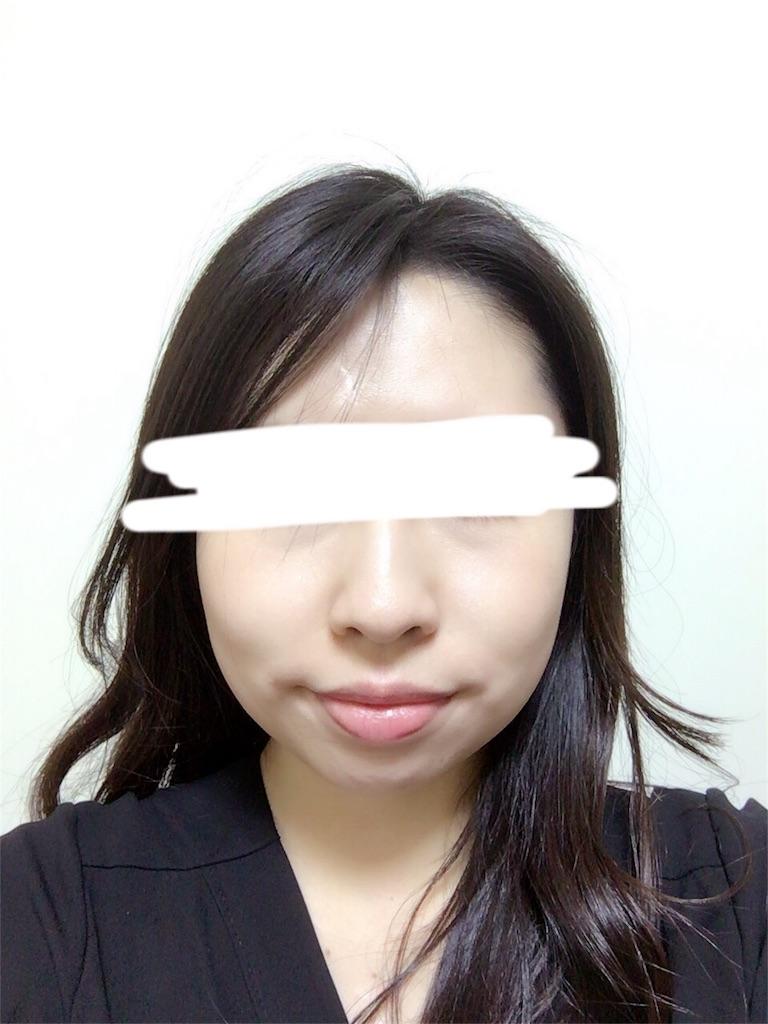 f:id:biyou-syuuji:20170212192325j:image