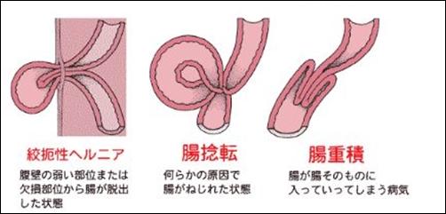 腸捻転のイラスト