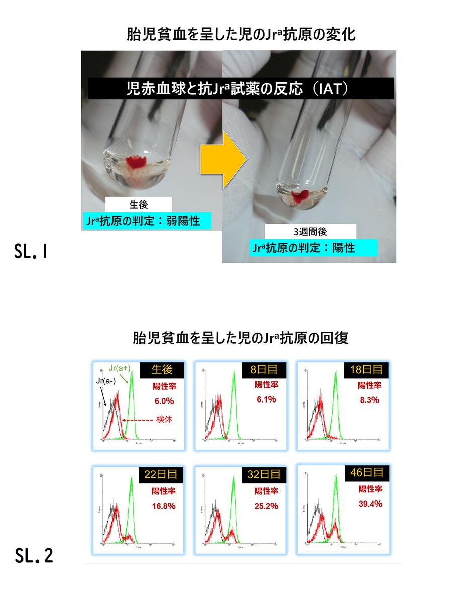 f:id:bloodgroup-tech:20200406091403j:plain