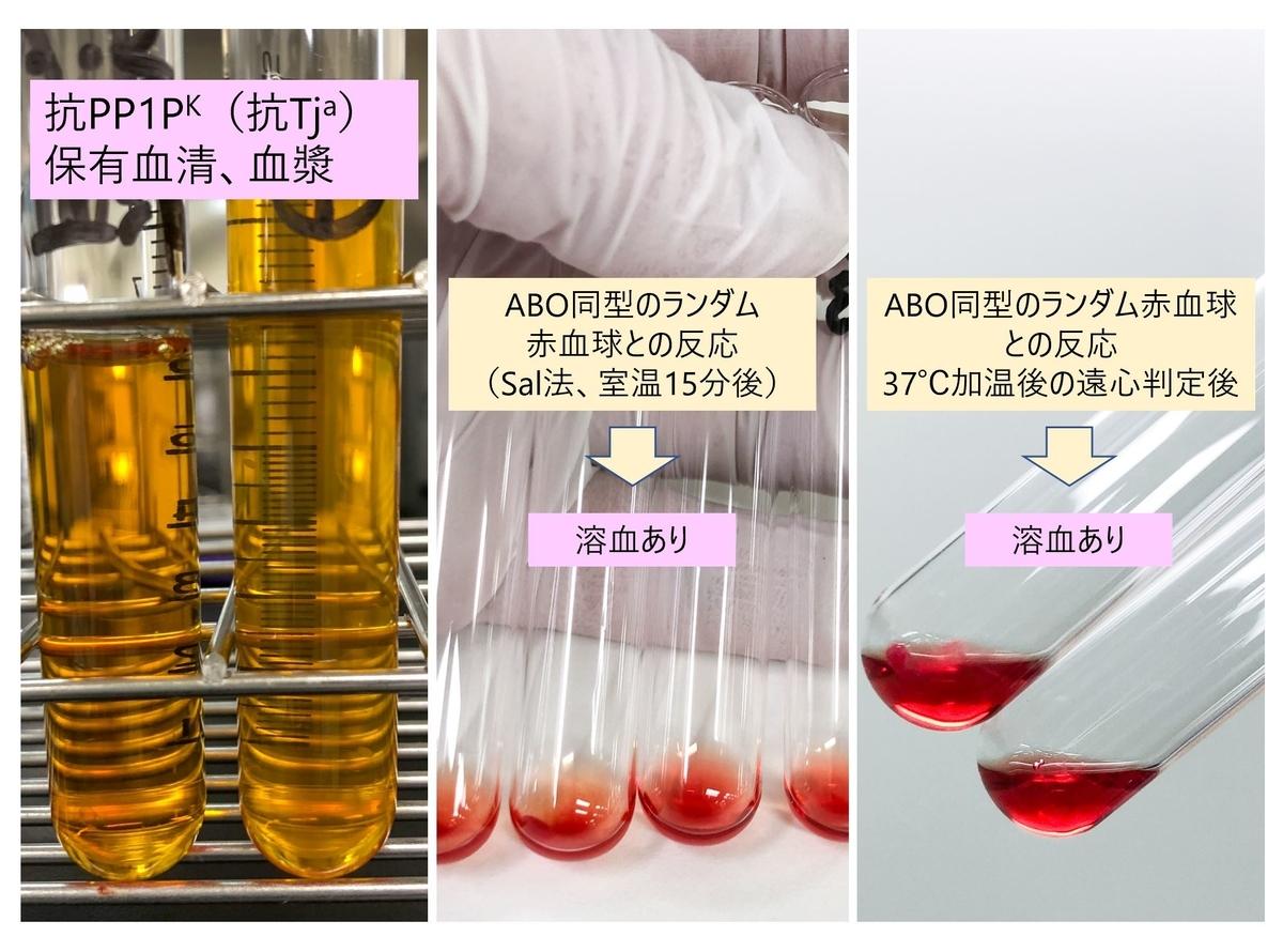 f:id:bloodgroup-tech:20200523204855j:plain