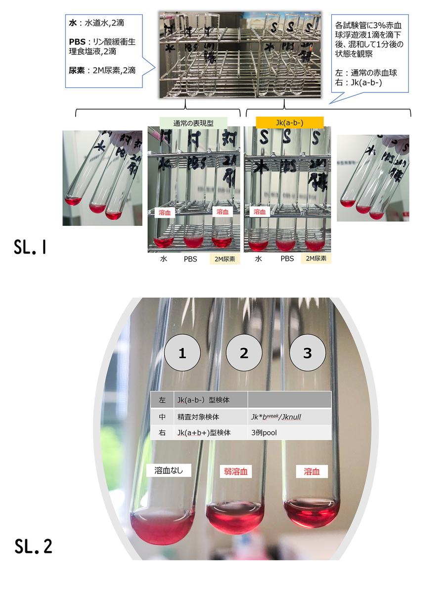 f:id:bloodgroup-tech:20200910085845j:plain