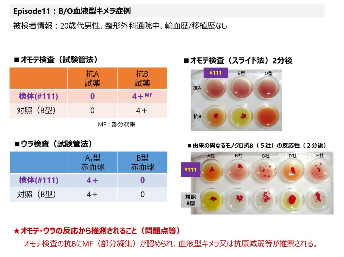 f:id:bloodgroup-tech:20210123093358p:plain