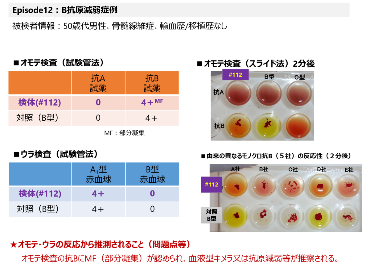 f:id:bloodgroup-tech:20210123131202p:plain
