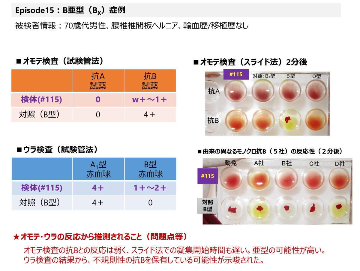 f:id:bloodgroup-tech:20210207094600p:plain
