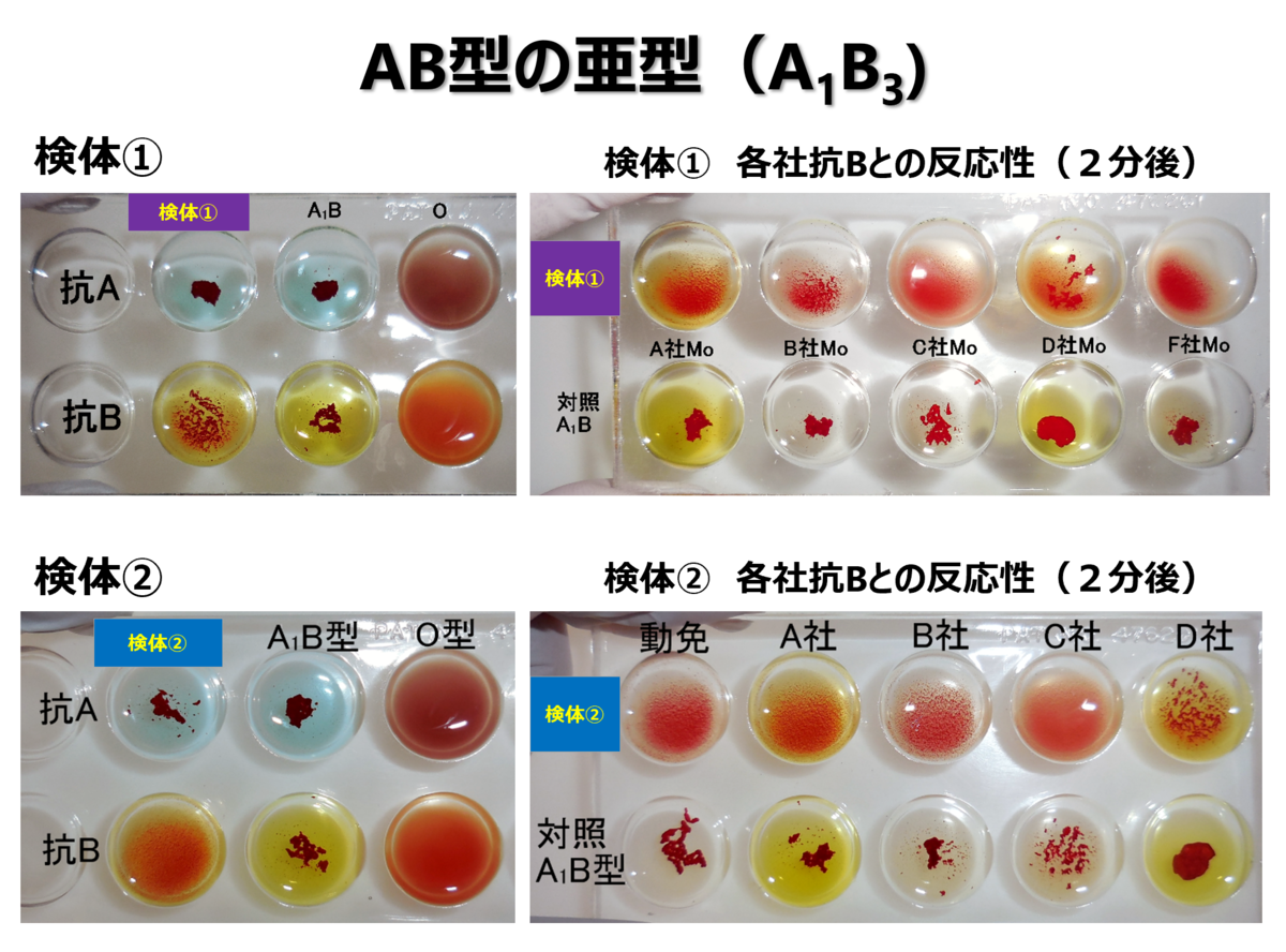 f:id:bloodgroup-tech:20210215194038p:plain